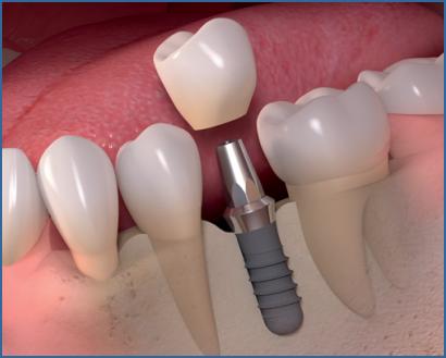 Parodontitis (Parodontose) Behandlung