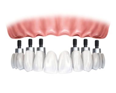 Ceramic crown - bridge technique